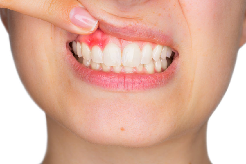 76656073 - closeup portrait of young woman showing, with his finger, inflamed upper gingiva with pain expression. dental care and toothache.